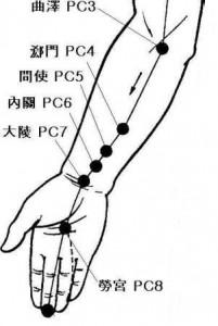acupunctuurpunten bij carpale tunnelsyndroom