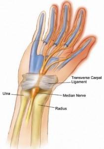 carpale tunnel syndroom, een aandoening waarbij de middelste zenuw (nervus medianus) bekneld is.