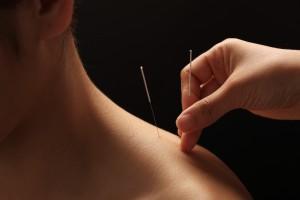Acupunctuur Groesbeek