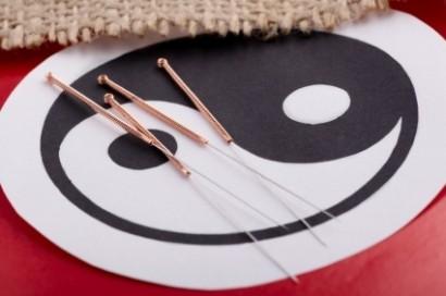 Acupunctuur Wijchen